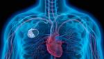 Batterielaufzeiten von Herzschrittmachern verbessern
