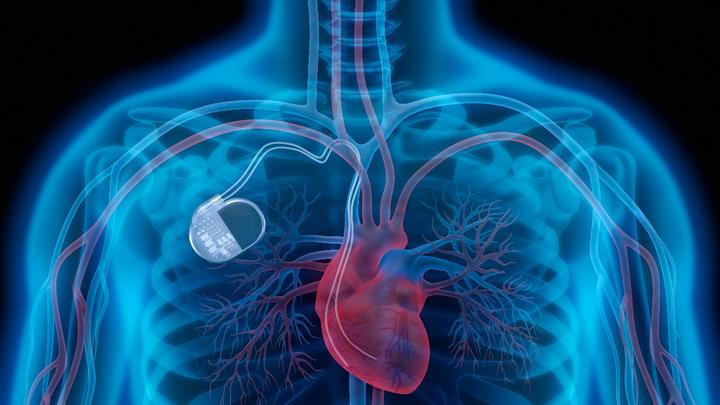 Röntgenbild menschlicher Brust mit Herzschrittmacher (Symbolbild)