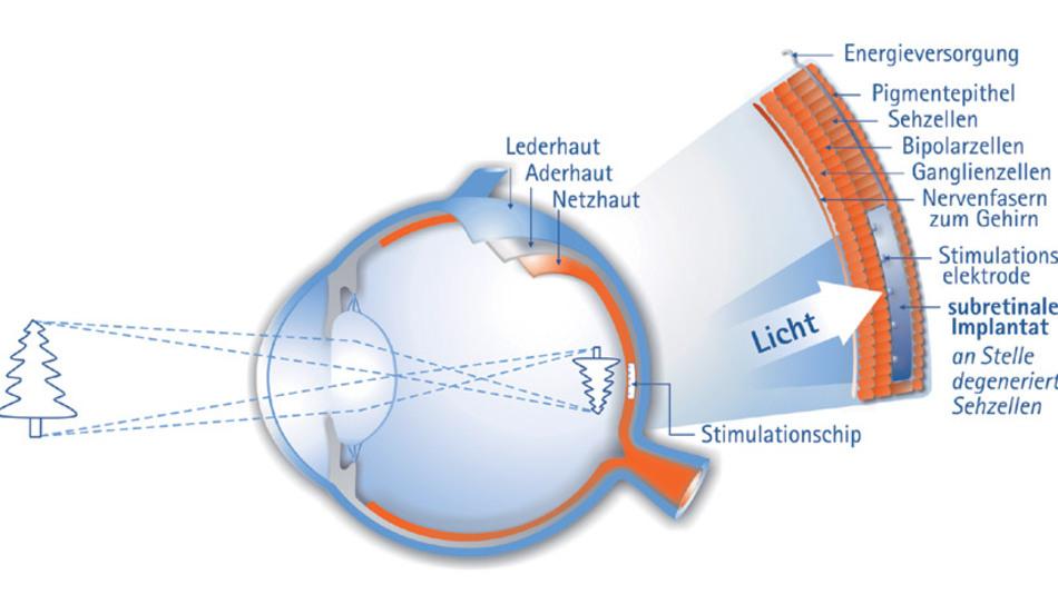Bild 1. Prinzipaufbau des unter der Retina eingebrachten Implantats. (Bild: Retina Implant AG)