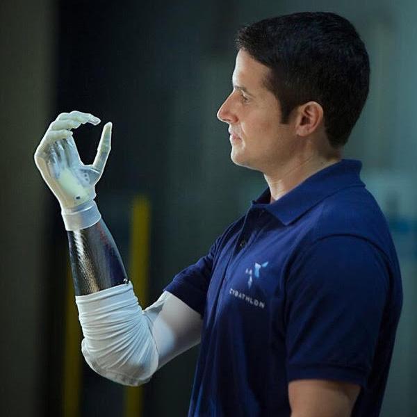 Michel Fornasier, aka Bionicman